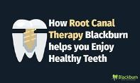 How Root Canal Therapy Blackburn helps you Enjoy Healthy Teeth PowerPoint Presentation