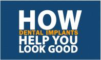How dental implants help you look good PowerPoint Presentation