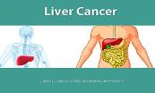 About Liver Cancer Powerpoint Presentation