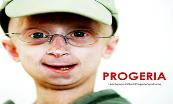 Progeria (Aging Disease) Powerpoint Presentation
