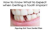 How to Know What to Expect when Getting a Tooth Implant Powerpoint Presentation