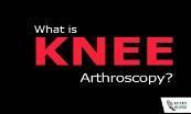 What is Knee Arthroscopy? Powerpoint Presentation