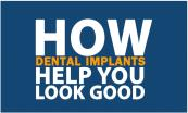 How dental implants help you look good Powerpoint Presentation