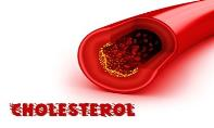 Cholesterol PowerPoint Presentation