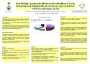 Non Hodgkin Lymphoma Showing Abnormalities of c myc Including Powerpoint Presentation