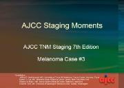 Staging Moments Melanoma Case 3 Powerpoint Presentation