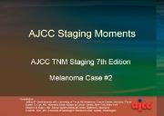 Staging Moments Melanoma Case 2 Powerpoint Presentation