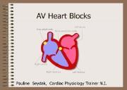 ECG (Heart Blocks) Powerpoint Presentation