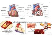 Coronary Heart Disease Powerpoint Presentation