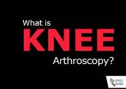 What is Knee Arthroscopy? Powerpoint Presentation
