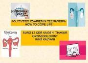 Polycystic Ovary Syndrome Powerpoint Presentation