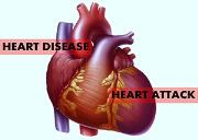 Heart Disease and Heart Attack Powerpoint Presentation