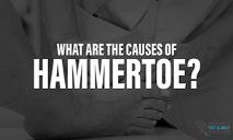 What are the Causes of Hammertoe? PowerPoint Presentation