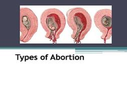 Types of Abortion PowerPoint Presentation