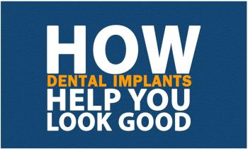 How dental implants help you look good Ppt Presentation