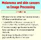 About Skin cancer and melanoma Powerpoint Presentation