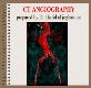 About CT ANGIOGRAPHY Powerpoint Presentation